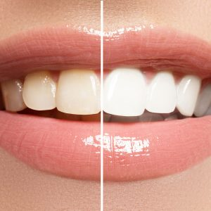 Best Teeth Whitening Kit • Reviews & Buying Guide (February 2021)